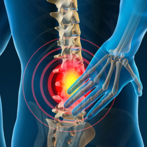 How To Cure Backpain At Home Quickly